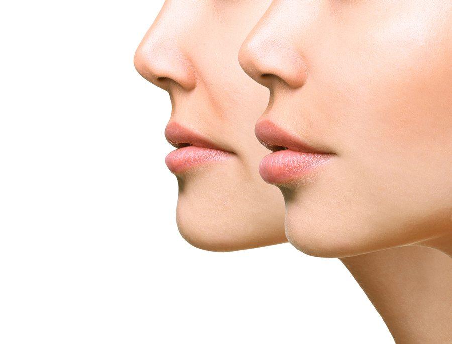 botox lips cost